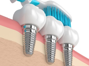 toothbrush and dental implants