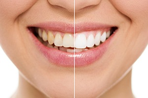 Smile half befire and half after teeth whitening
