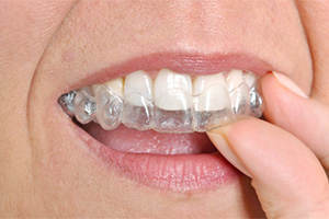 teeth Invisalign