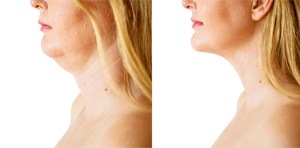 A before an after look of a woman's chin with Kybella