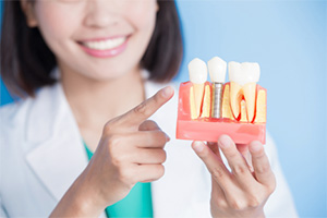 dentist holding dental implant model.