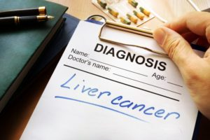 diagnosis liver cancer
